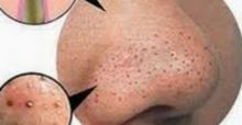 5 tips to remove blackheads