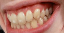 What are white stains on teeth?