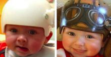 Various artists decorate baby medical helmets to look fun and cool