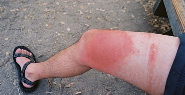 Bee sting allergic reaction - photo#6