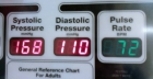 Understanding blood pressure values