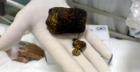 All about gallstones symptoms