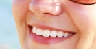 Want perfect white teeth for the perfect smile? Try Lumineers