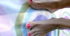 In-growing toenails: symptoms and treatment