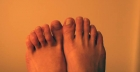 Ingrowing toenails: cures and useful advice