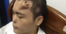 Plastic surgery: Chinese man has nose grafted on forehead after losing protuberance