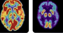 New blood test may detect the risk of Alzheimer's
