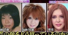 Vanilla Chamu extreme surgical makeovers to look like a  French doll