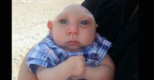 Baby Jaxon who was born with most of his skull missing defies odds and celebrates 1st birthday